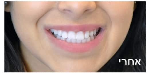 טיפולי שיניים אחרי
