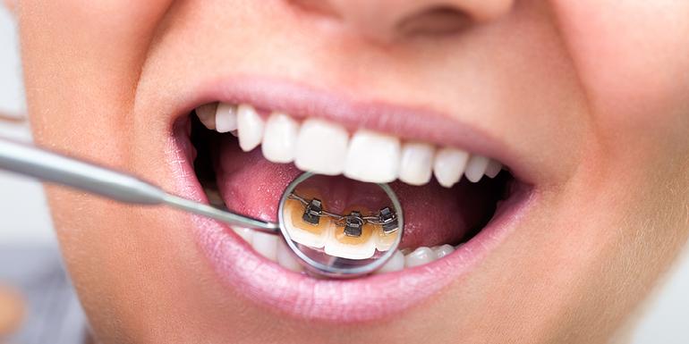 שיניים עקומות