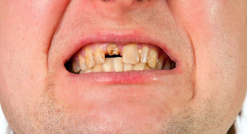 שיניים רקובות