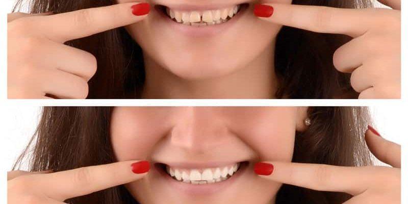 צמצום רווחים בשיניים